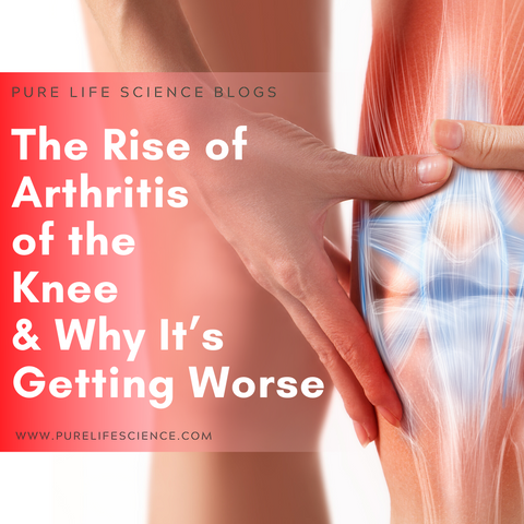 The Rise of Arthritis of the Knee & Why It's Getting Worse Blog | Pure Life Science
