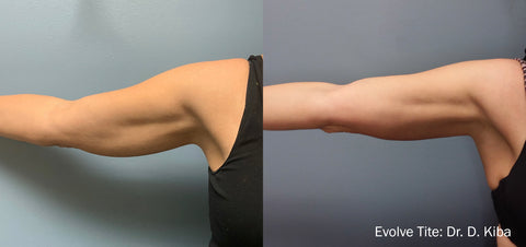 Evolve Body Sculpting Before and After: Arm has defined muscle and tightener skin.