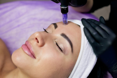 Woman with getting microneedling, how often should I get microneedling?