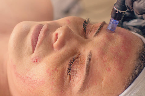 Woman with skin issues getting microneedling, how often should I get microneedling?