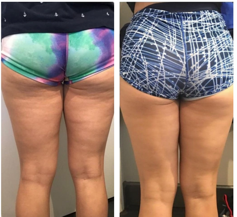 Body FX Before and After: Skin on buttocks and back of legs much smoother and tighter.