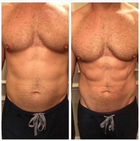 Emsculpt Before and After: Ab muscles defined and prominent.