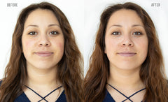 Before and After: Woman completes HydraFacial. The results are reduction in discoloration and redness.