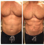 Before and After: Man undergoes Emsculpt body sculpting treatment. The results are more defined abs and weight loss around the stomach.