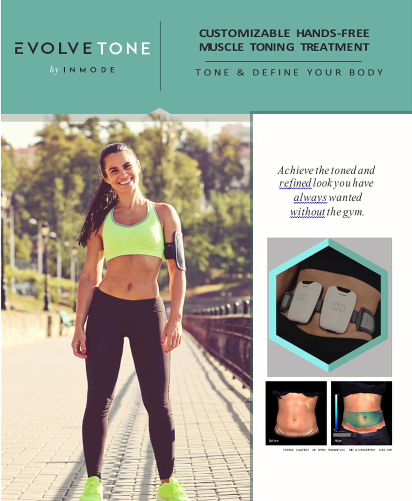 Tone - Package of 4