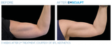 Before and After: Woman completes Emsculpt body sculpting treatment. The results are muscle gain and definition in the biceps.