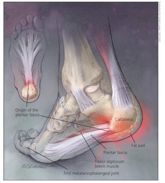 Causes and Treatment of Plantar Fasciitis – Newton Running