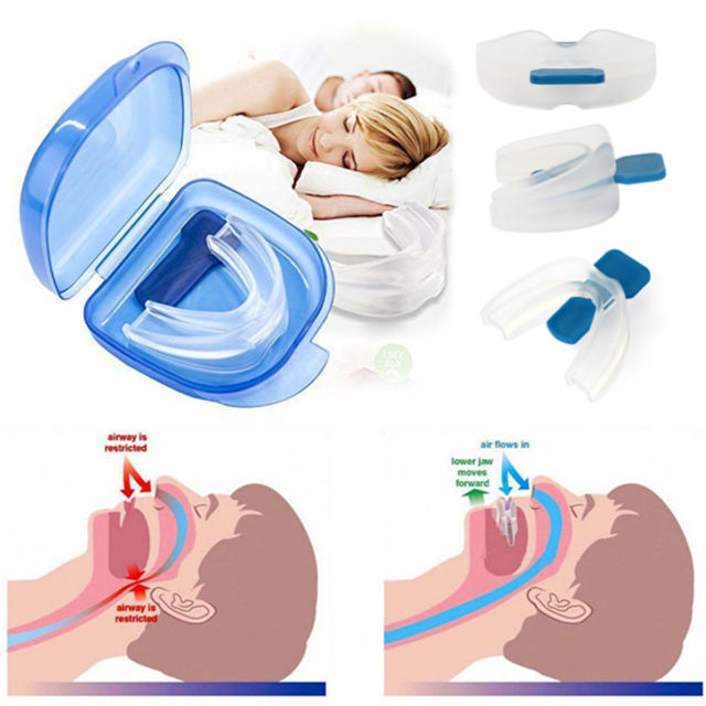 Silicone Anti Snoring Mouth-guard 3 Pack - shopaholicsonlyco