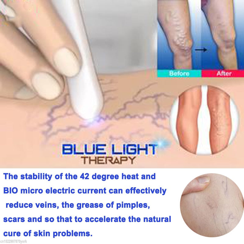 Laser Treatment Pen - shopaholicsonlyco