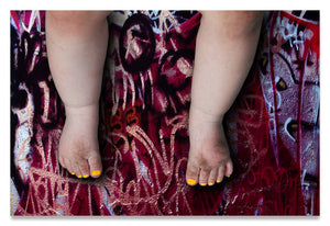 Female Baby Legs and Yellow Painted Toenails on Graffiti Background- Metal Print-Aluminum Print