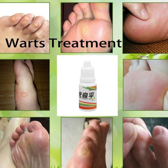 Body Warts Treatment - gkstocks