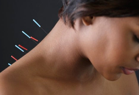 Acupuncture Needles - Ireland