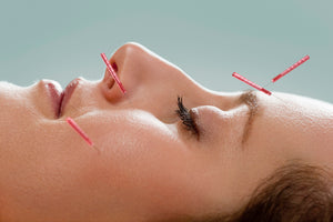 Facial Acupuncture Needles Dublin