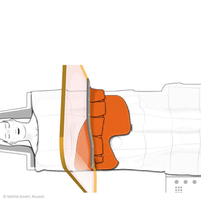 Graphic Reusable Scatter Reducing Drape with Femoral Access - Deutsch Medical