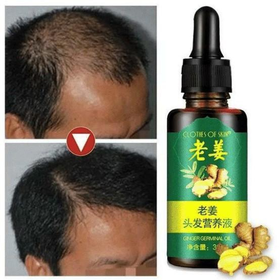 ReGrow Ginger Germinal Hair Growth Serum - For Men And Women