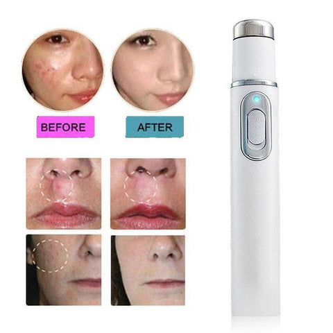 Image of Skin Spots Removal Pen ( Buy 2 Get Extra 10% Off ) TopViralPick