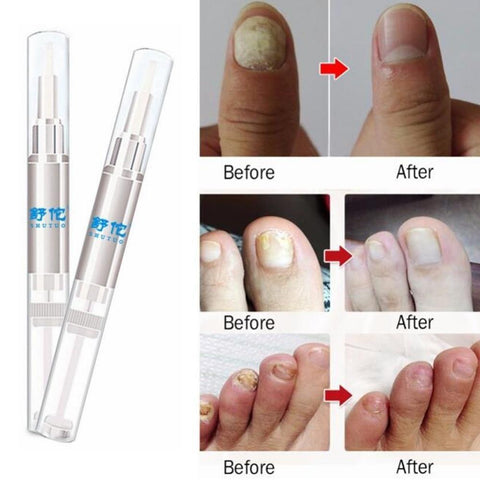 Anti Fungal Nail Herbal Repair Pen TopViralPick