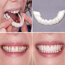 Load image into Gallery viewer, Perfect Smile Cosmetic Teeth