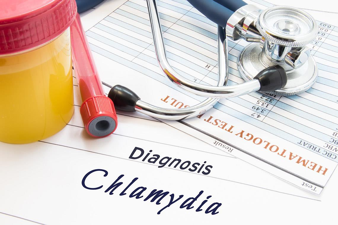 Treating chlamydia is no big deal for now
