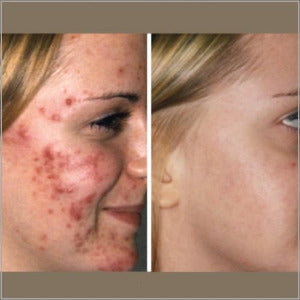 Biophotonic Acne Facial Treatment