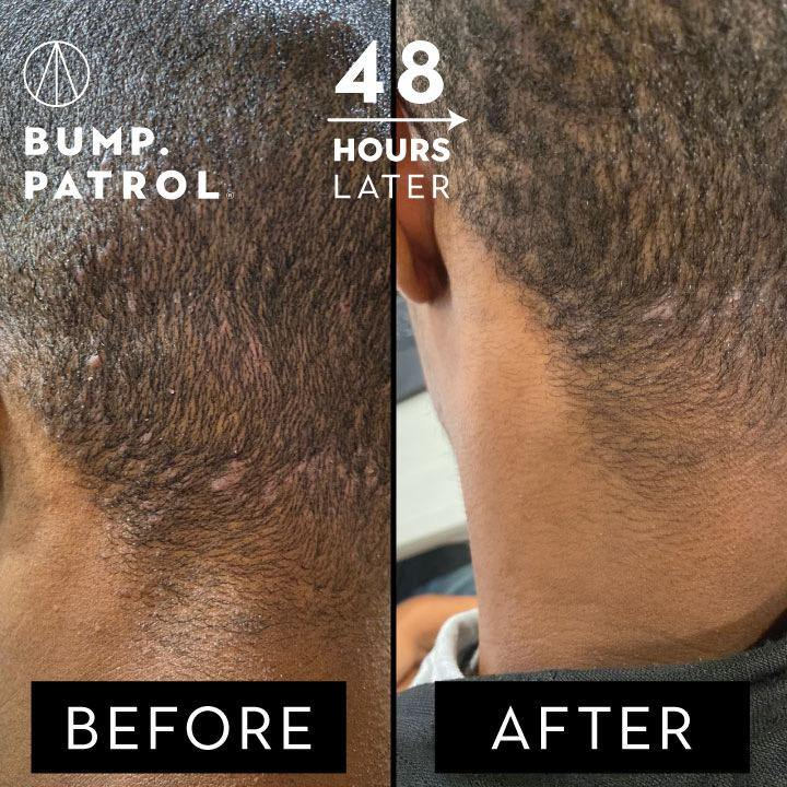 Bump Patrol Aftershave Before and After | PatrolGrooming