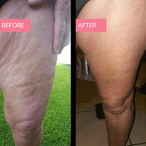 Cellulite Treatment Lotion