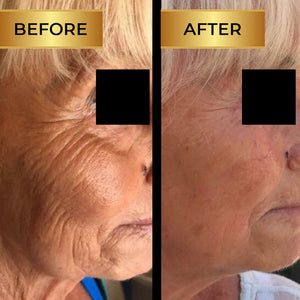 Instant Face Lift Gel