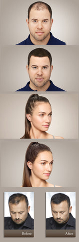 Image of Miracle Hair Loss Solution