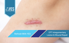 CPT Integumentary - Lesion & Wound Repair | Ceus Included