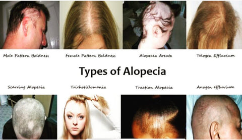 The Different Types of Alopecia Hair Loss