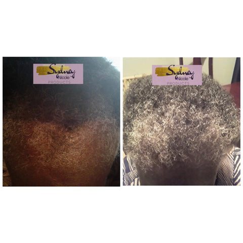 Frontal Fibrosing Alopecia Customer Results