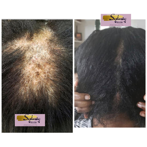 CCCA/ Scarring Alopecia Customer Results