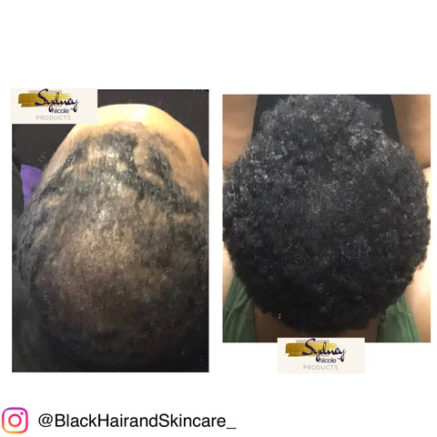 CCCA Alopecia Customer Results