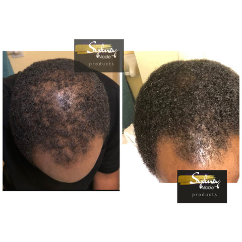 Male Pattern Baldness Customer Results