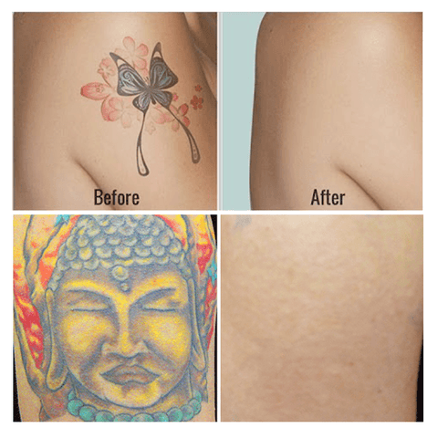 Tattoo Removal Cream Banghappy
