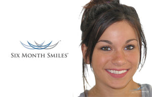 Six Month Smiles - Straight teeth, fast