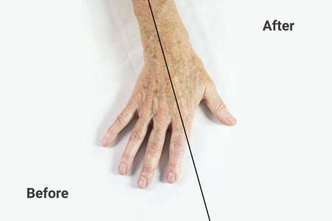 before and after lightening sun spots age spots hand treatment with moisturizer and vitamin c