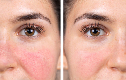 red skin rosacea before after