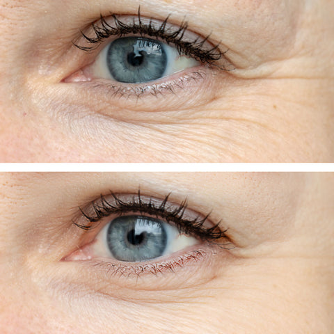 crows feet eye area wrinkle reduction before and after
