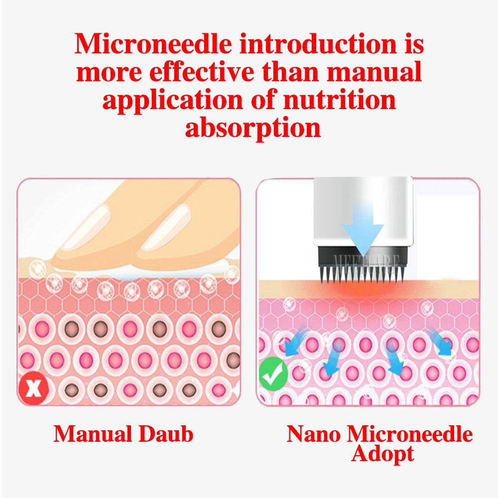 Dr Pen Needle Cartridge NeedleTip Exfoliate Shrink Pores Device Electric Micro Rolling Derma Pen Therapy Beauty Tool