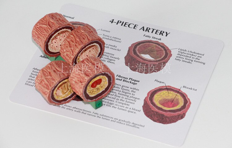 4-Stage Cross Section Human Artery Atherosclerosis Anatomical Mode Thrombotic process