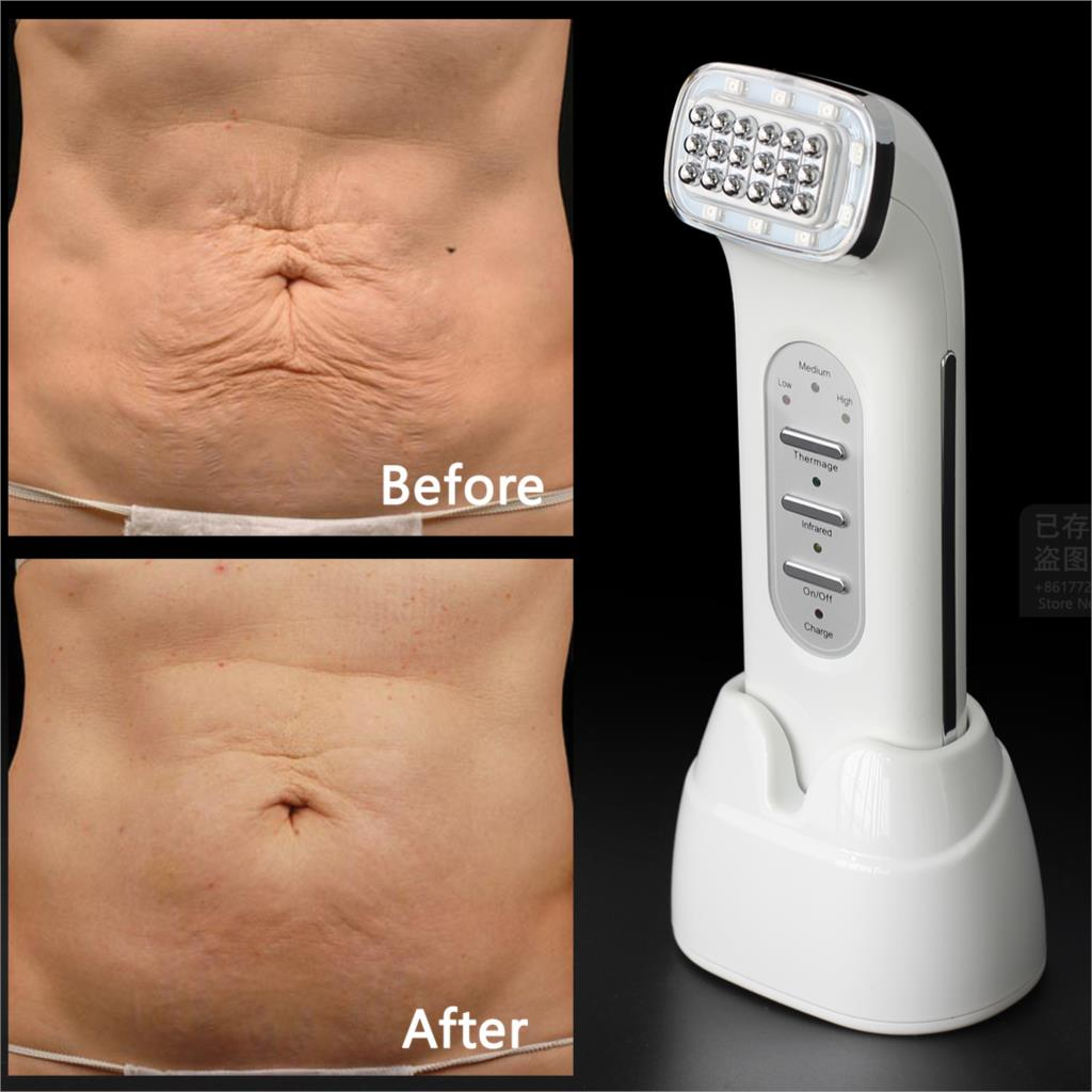 Real Remove Wrinkles Dot Matrix Facial Thermage Radio Frequency Lifting Face Lift Body SKin Care Beauty Device 110-240V