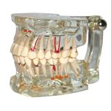 Dental Model Teeth Pathology Model With Half Implant Show Clearly the Original Shape and the Whole Structure
