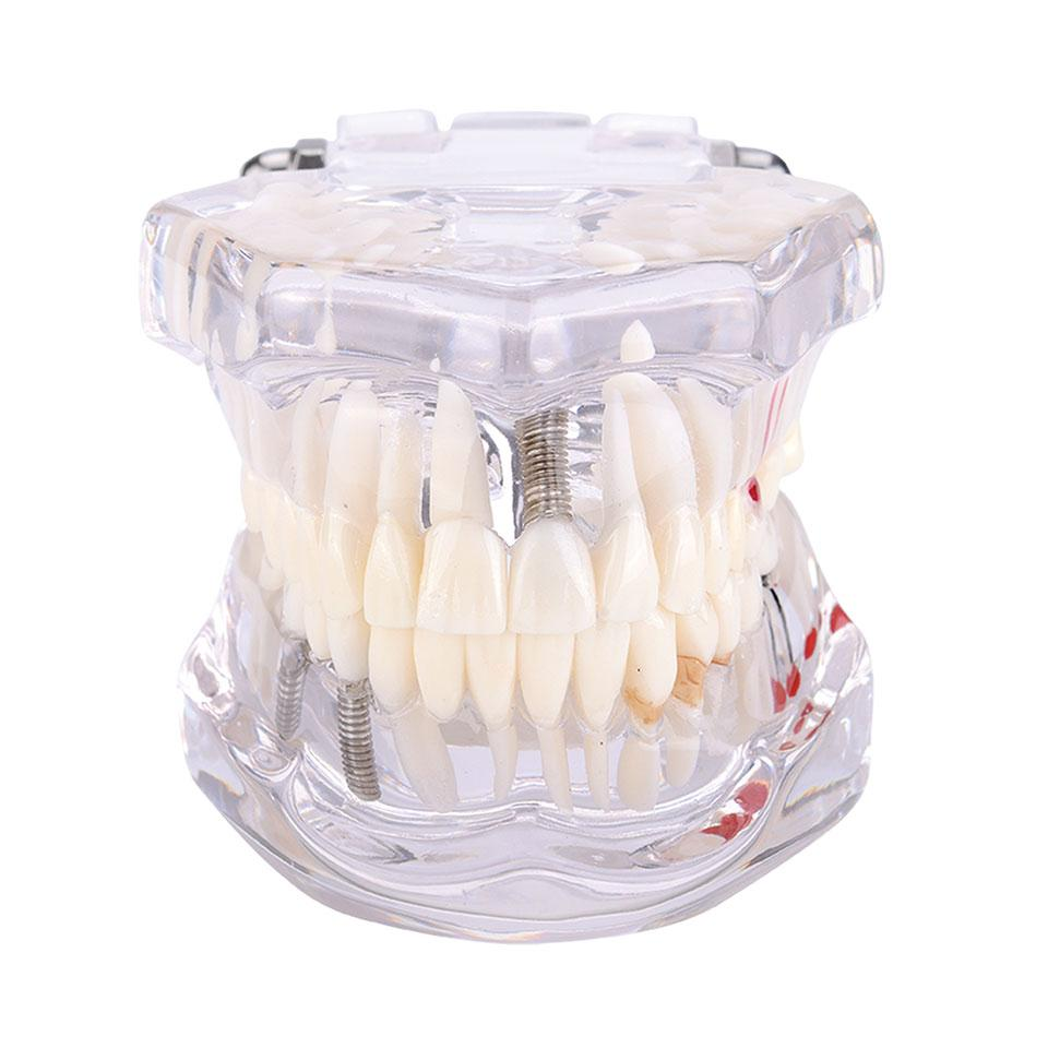 Dental Restoration with Implant Model Showing Some Treatment Methods:Implant, Maryland fixed Bridge, Inlay and Others.