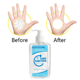 Hand Sanitizer Wipe Out Bacteria 300ML