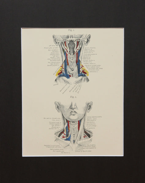 Matted Antique (c.1897) Anatomy Print, Plate XVII: The Neck