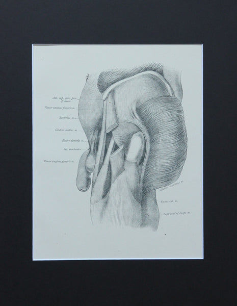 Matted Antique (c.1897) Anatomy Print, Plate LXIV: Hip Joint Region & Penis