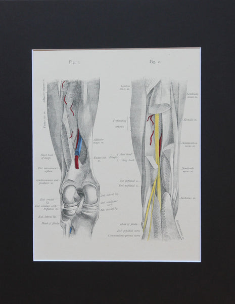 Matted Antique (c.1897) Anatomy Print, Plate LXXIV: The Thigh & Knee Joint