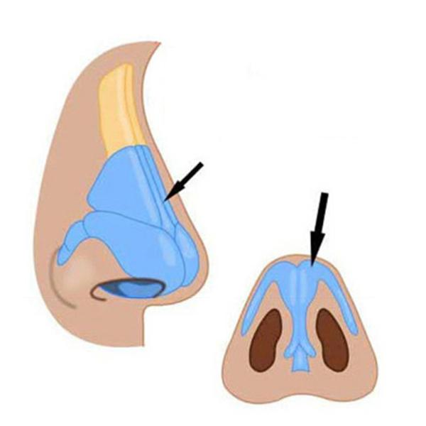 Nose-Up Nose Shaper