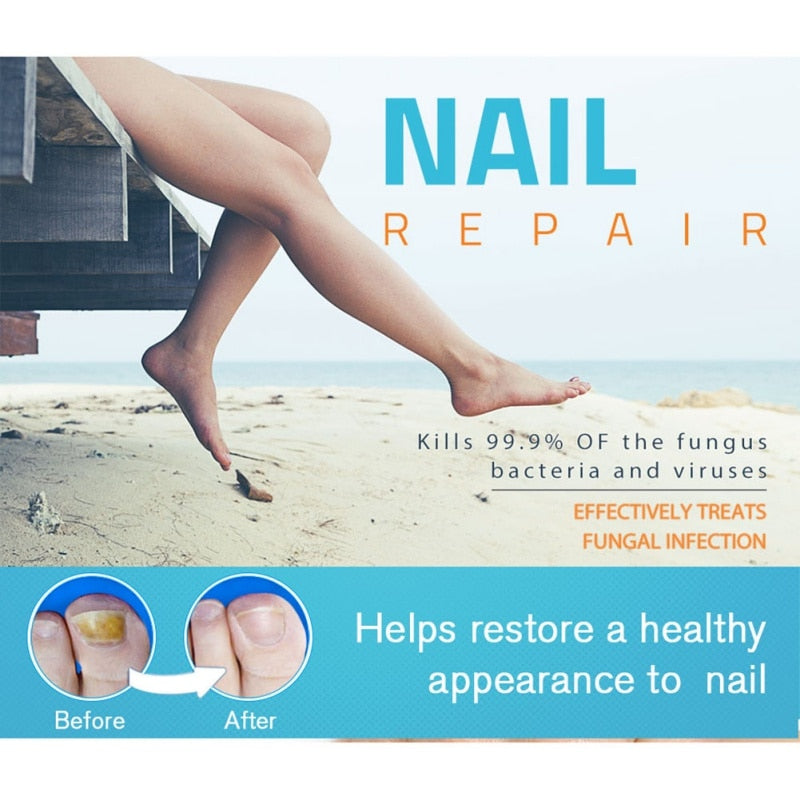 Nail Fungal Instant Removal